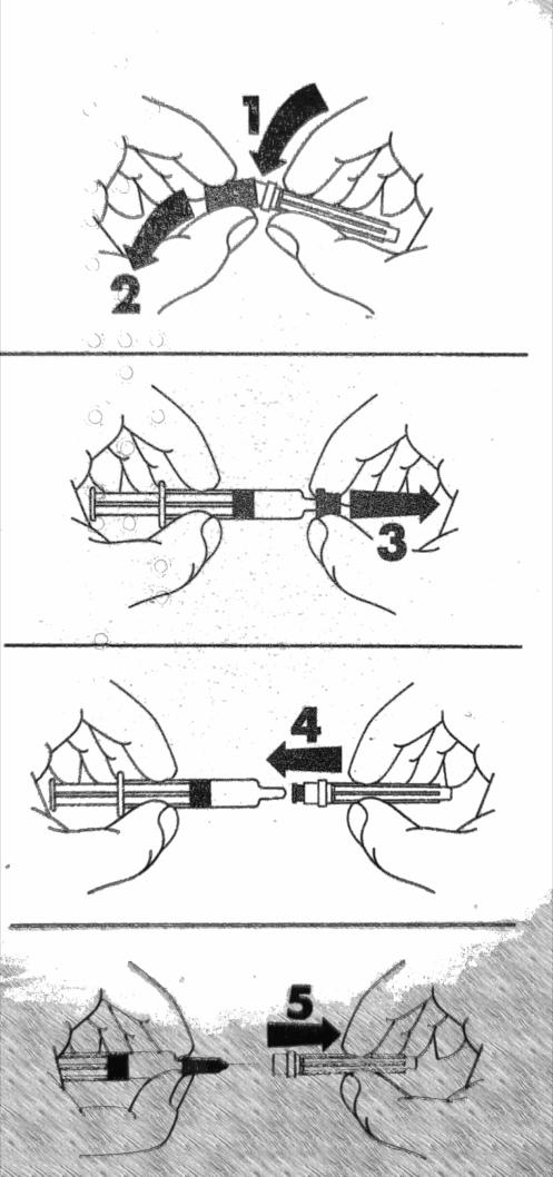 In diesen 5 einfachen Schritten wird die Fertigspritze vor der Injektion zusammengebaut